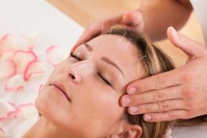 Akupunktur-statt-Botox