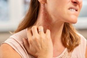 Lebensmittelallergie-Symptom-Ausschlag